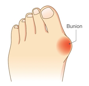 Bunion on the Foot