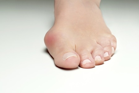 Hallux Valgus in woman's foot