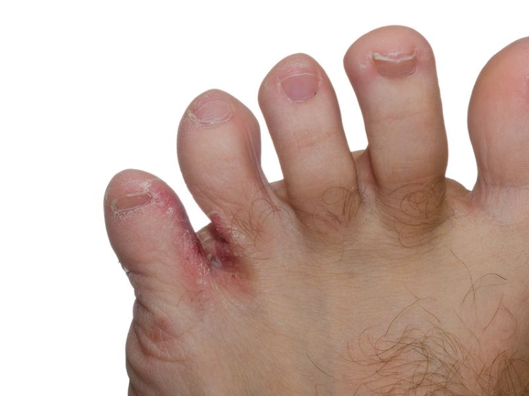 Athelets Foot Infection Between Toes