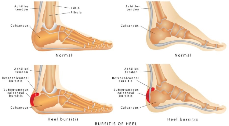 Bursitis of Heel