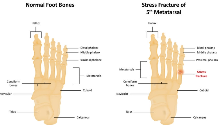 Foot Stress Fracture