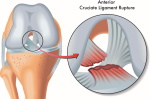ACL Cross Section